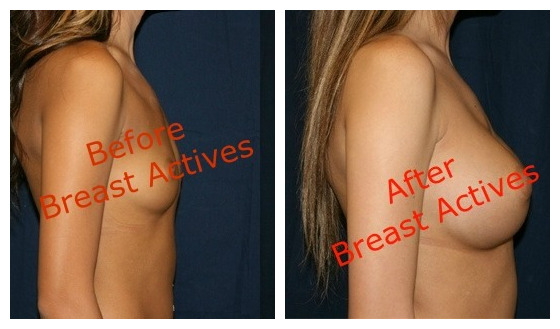 before and after Breast Actives treatment